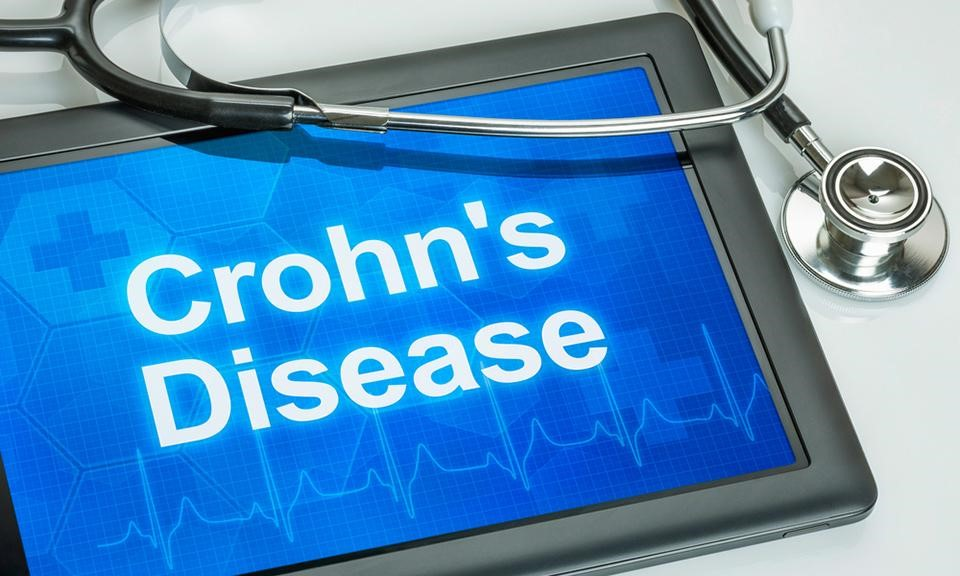 Top 10 Strains to Combat Crohn's Disease and Colitis