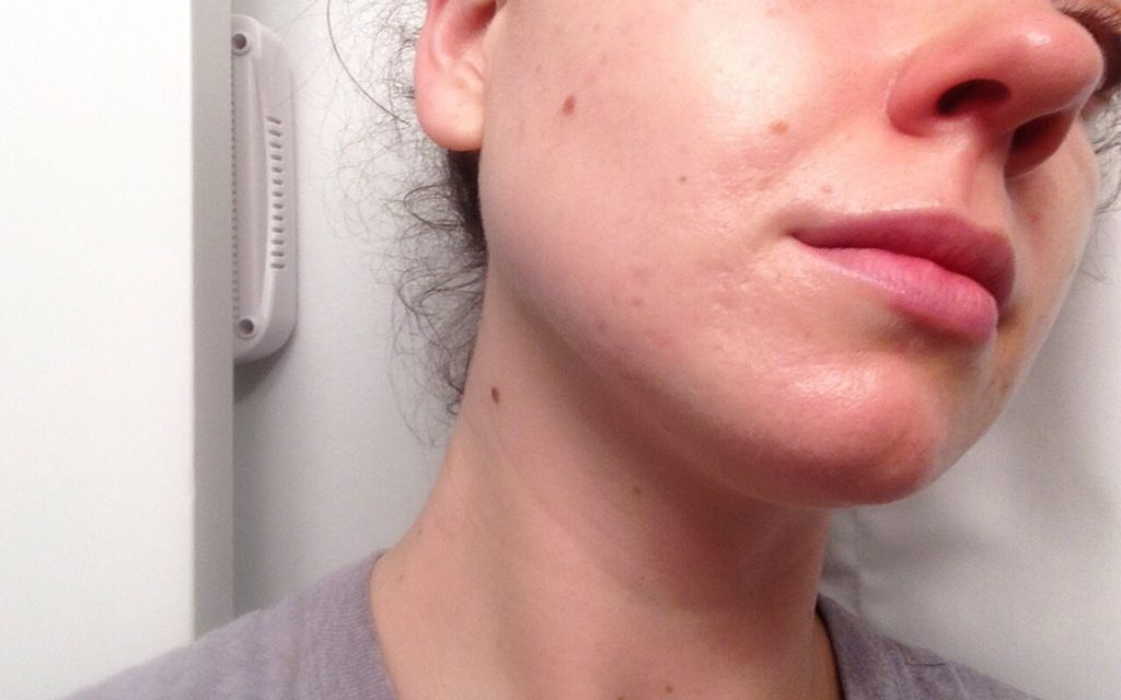 Acne prone skin before using cannabis beauty products