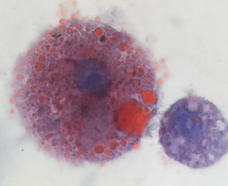 An oil-laden immune cell extracted from a VAPI patient in Utah (left). On the right, a normal macrophage. (Courtesy Andrew Hansen, Jordan Valley Medical Center)